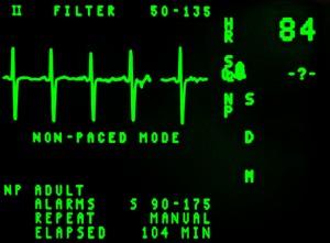 S&amp;P 500 (NYSEARCA:<a href='http://seekingalpha.com/symbol/spy' title='SPDR S&P 500 Trust ETF'>SPY</a>) has no pulse