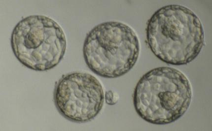 The blastocyst, when the embryo has reached 50-150 cells, is a very favorable stage for implantation and pregnancy. The inner cell mass contains the cells that will give rise to the actual cells of the fetus. The other cells that surround and protect the inner cell mass give rise to the fetal part of the placenta. Photo: Robert Shabanowitz, Gesinger Medical Cente