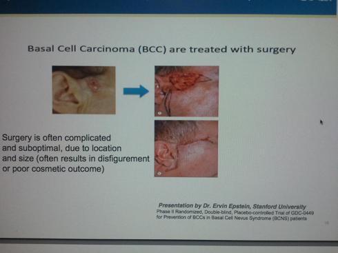 Basal Cell Surgical Scarring