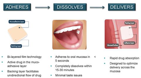BEMA (BioErodible MucoAdhesive) Advantages