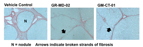 GR-MD-02 and GM-CT-01 both reverse cirrhosis in rat model