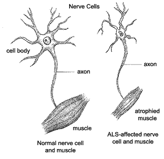 Image showing healthy nerve sells and muscles vs. ALS affected nerve cells and muscles.